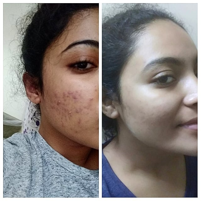 How to remove acne/pimple blemishes? 12 face packs and home remedies.